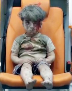 Syrian child, Omran Daqneesh